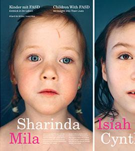 Children with FAS // Kinder mit FAS